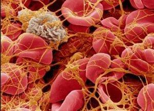 علاج تخثر الدم بالاعشاب