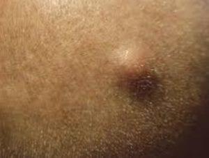 التخلص من الشعر تحت الجلد