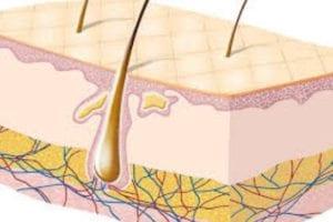 ازالة الشعر تحت الجلد