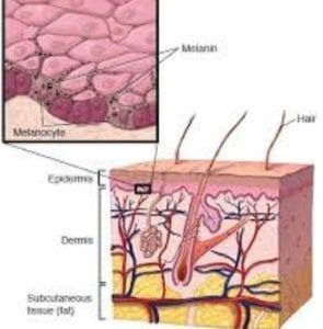 علاج الشعر تحت الجلد
