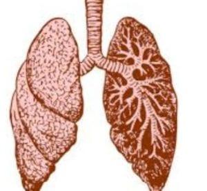 cystic fibrosis بالعربي