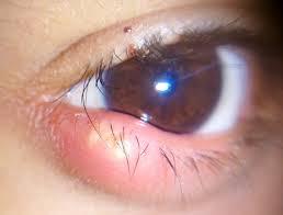 حساسية العين