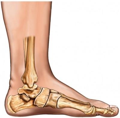 القدم المسطحة او الفلات فوت