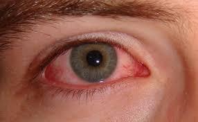 التهاب قرنية العين