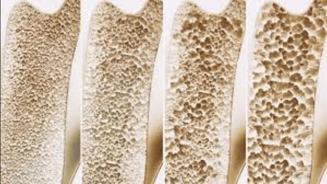 اسباب هشاشة العظام وأكثر الفئات