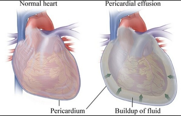 التهاب غشاء القلب