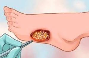 علاج الغرغرينا