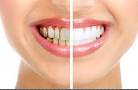 علاج جير الاسنان