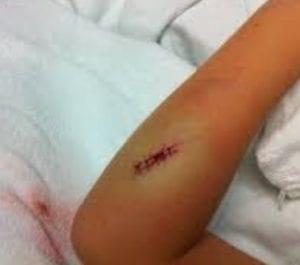 ازالة اثار الجروح بسرعة