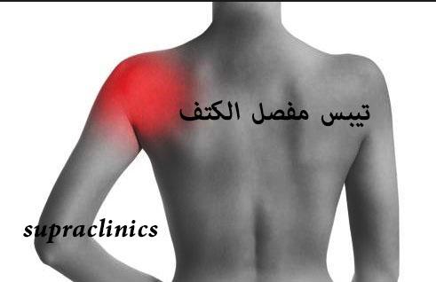 اعراض الكتف المتجمد وتيبس الكتف