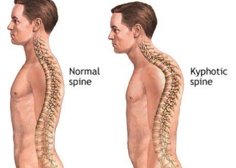 أعراض مرض شيرمان