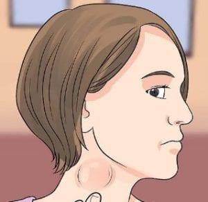 اعراض الحصبة الالمانية