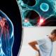 أهم أعراض التصلب اللويحي