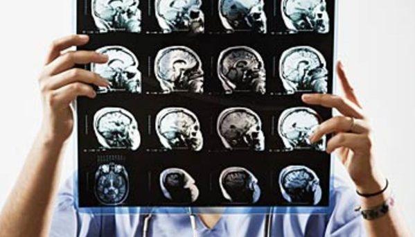 تشخيص التصلب اللويحي