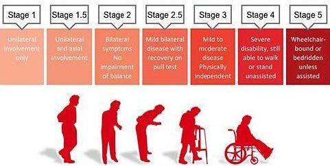 تطور مرض باركنسون