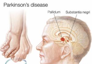 مراحل تطور مرض باركنسون
