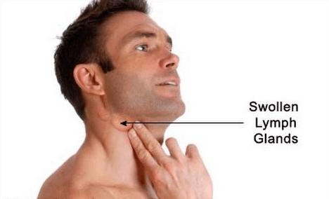عودة مرض سرطان الغدد اللمفاوية