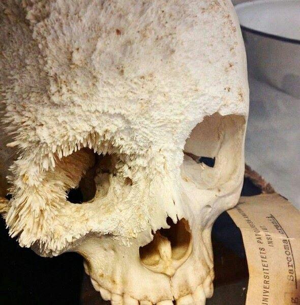علاج سرطان العظام بالاشعاع