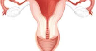 التهاب المهبل البكتيري اسبابه وعلاجه