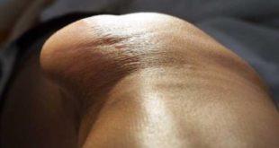 انحراف صابونة الركبة