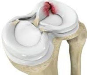 قطع غضروف الركبة