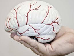 علاج ضيق شرايين المخ