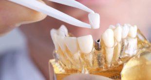 هل زراعة الاسنان مؤلمة