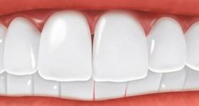 الم بعد زراعة الاسنان