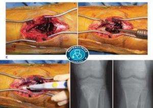 الكيس العظمي الدموي