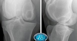 علاج الكيس العظمي