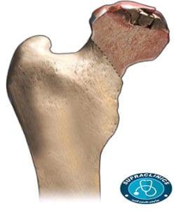مرض نقصان الدم المزود للعظام