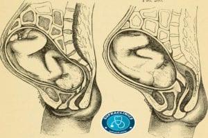 وضعية الجنين في الشهر الثامن بالصور