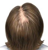 علاج تساقط الشعر للنساء مجرب