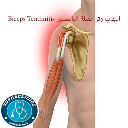 التهاب وتر عضلة البايسبس Biceps Tendinitis