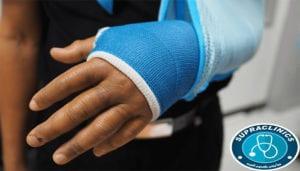 اعراض الكسور العظمية