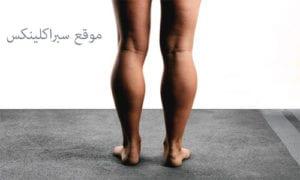عضلة سمانة الساق