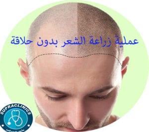 عملية زراعة الشعر بدون حلاقة
