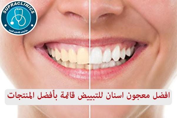 افضل معجون اسنان للتبييض