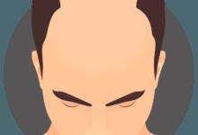 تسريع نمو الشعر للرجال