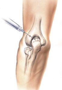 اضرار حقن خشونة الركبة