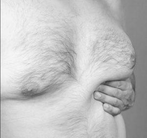 علاج التثدي عند الرجال بالكركم