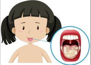 علاج حرارة الفم
