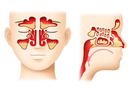 التهاب الجيوب الانفية