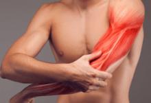 أسباب آلام العضلات المستمر